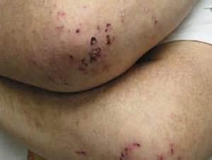 Blistering Diseases – Doctor V.